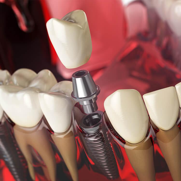 Dental implants - Dr Lolin Stomatološka ordinacija