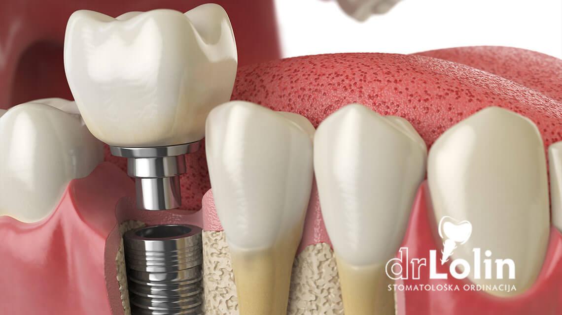 Zubni implanti i keramičke krunice
