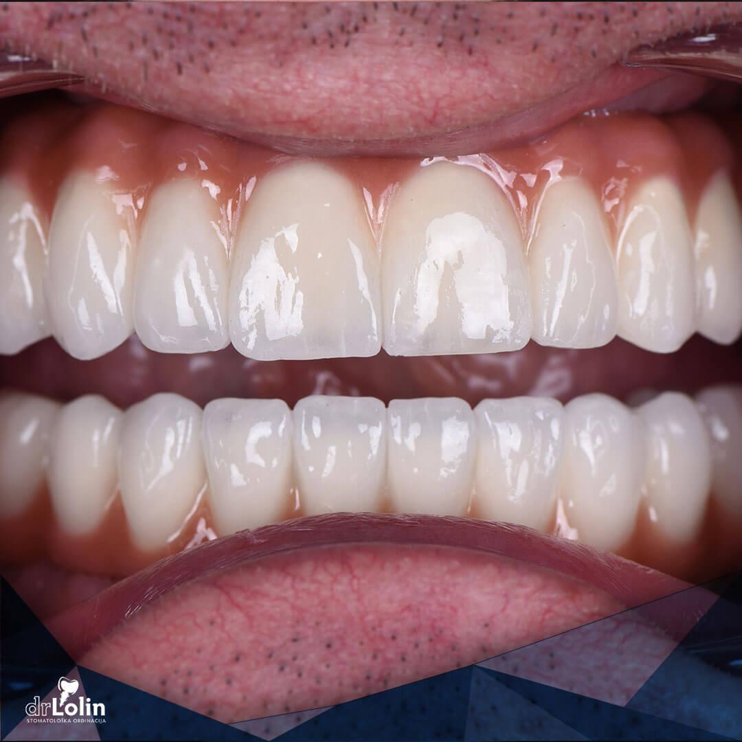 Rekonstrukcija zuba all on 4 iskustvo prikaz zuba frontalno