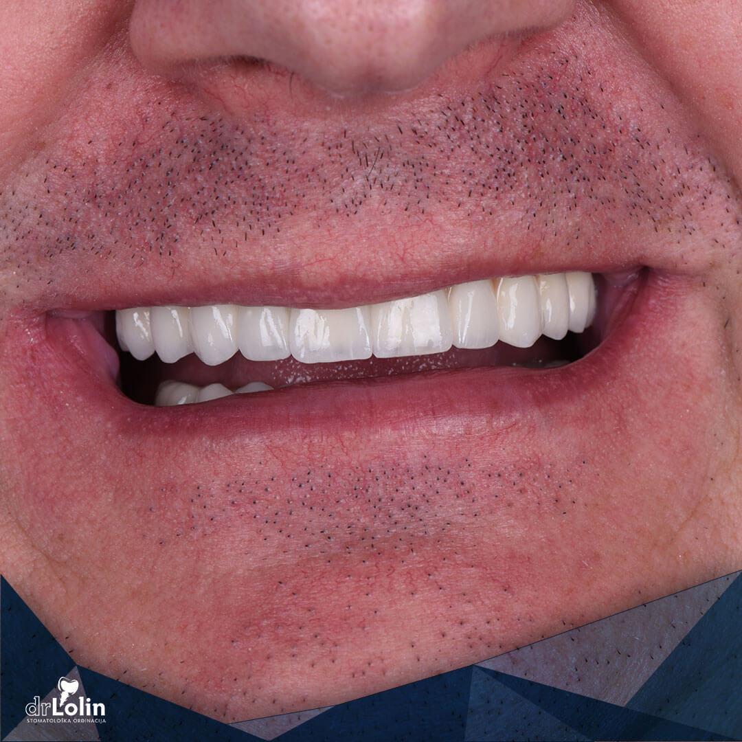 Zubni implanti rekonstrukcija zuba all on 4 iskustvo