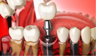 Zubni implanti cena