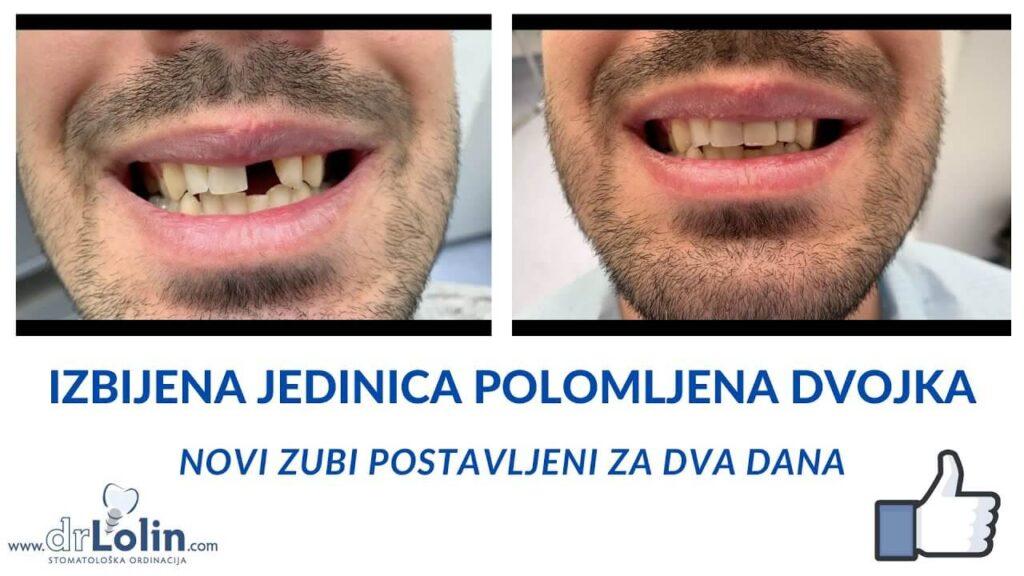 Ugradnja implantata odmah nakon vadjenja zuba