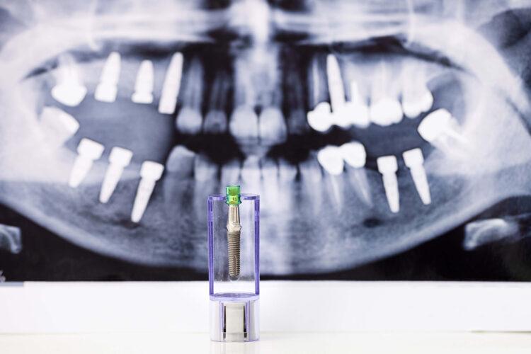Ugradnja zuba - Dr Lolin - Zubni implanti (1)