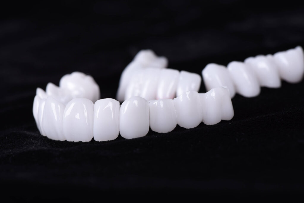 Cirkonjum krunice - idealne su za blistavo beli holivudski osmeh.