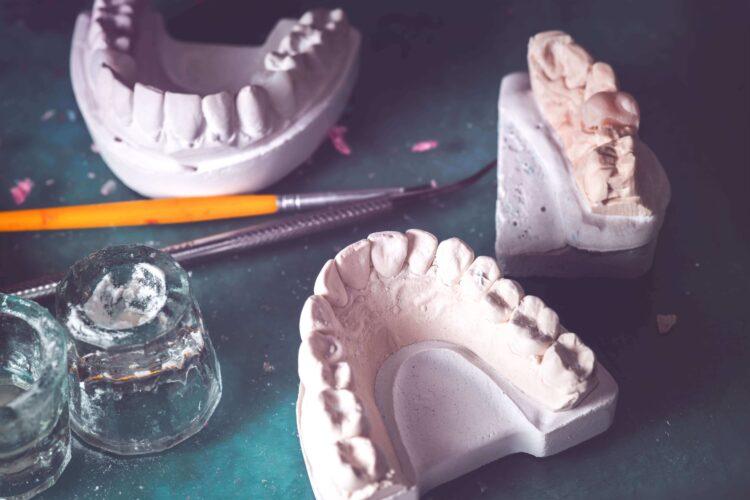 vestacki zubi 2