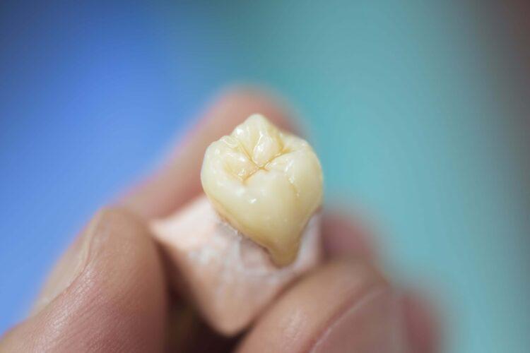 Veštački zubi